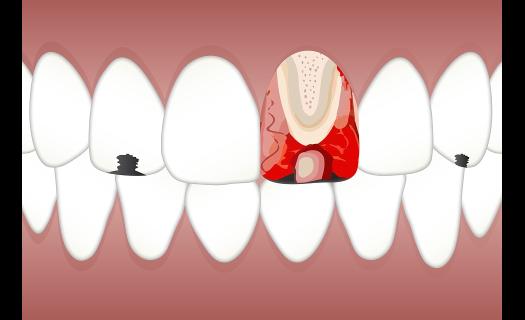 Inhalační analgetikum Praha – zbaví Vás strachu ze zubního ošetření