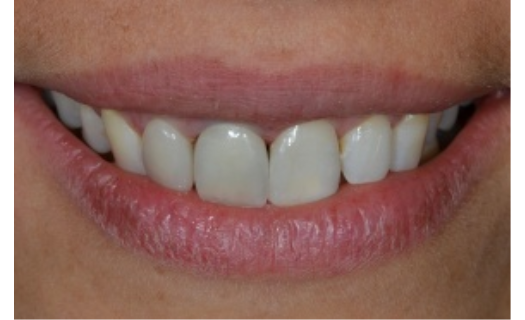 Zubní protetika Praha – zubní náhrady jednoho či více zubů