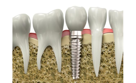 Náhrada chybějících zubů – bezbolestné řešení pomocí zubních implantátů Praha