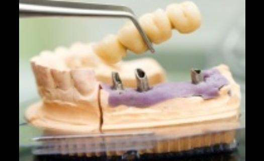 Zubní implantáty Praha – bezbolestně v lokální anestezii