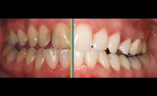 Bělení zubů Praha – bezpečné a účinné
