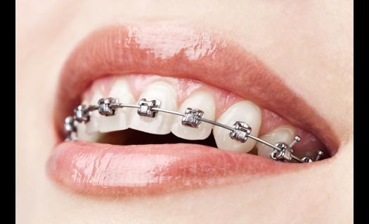 Ortodoncie Praha – pro Váš krásný úsměv