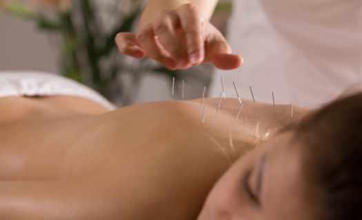 Léčba akupunkturou.