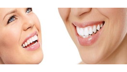 Léčba parodontitidy Praha 4 – specialisté na toto onemocnění