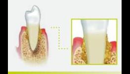 Parodontologické konzultace Praha 4 – zastavte nebo výrazně zpomalte toto onemocnění
