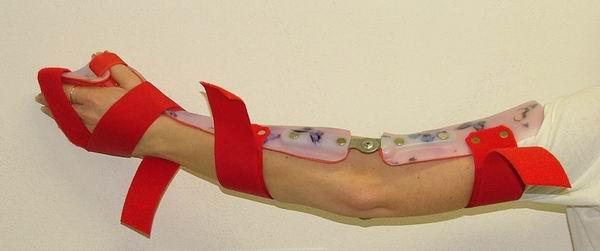 Společnost Ortotechnika, a.s., vyrábí ortézy na ruce, nohy a trup