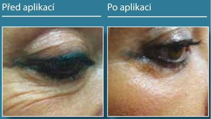 Přístroj Plexr pro ošetření bez narkózy, jizev - neablativní plastická chirurgie, blefaroplastika