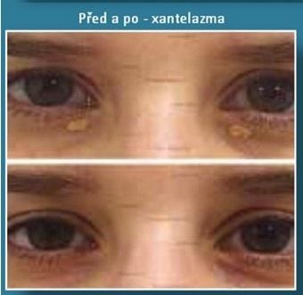 odstranění xantelasmat, tuku na víčkách přístrojem Plexr