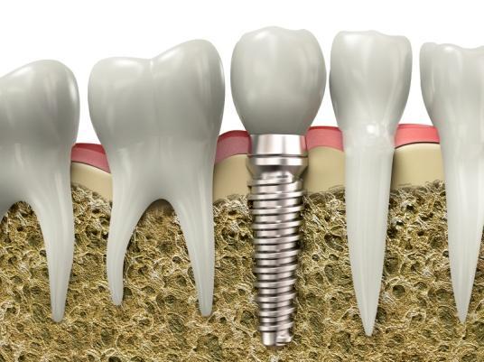 Zubní implantáty pro úplný chrup