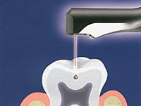 Ošetření zubů laserem - stomatologické ošetření laserovou technologií