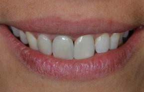 Zubní protetika