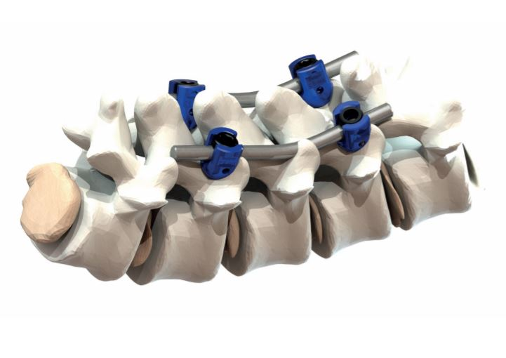 Nástroje a implantáty pro ortopedii, chirurgii a traumatologii