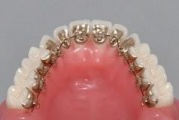 Dental Office H33 s.r.o., Praha, fixní neviditelná rovnátka pro trvale krásný úsměv