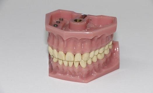 Stomatologická laboratoř Polná - výroba zubních protéz