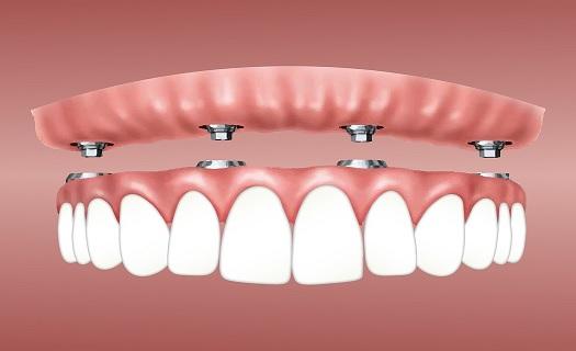 Zubní náhrady výroba Polná
