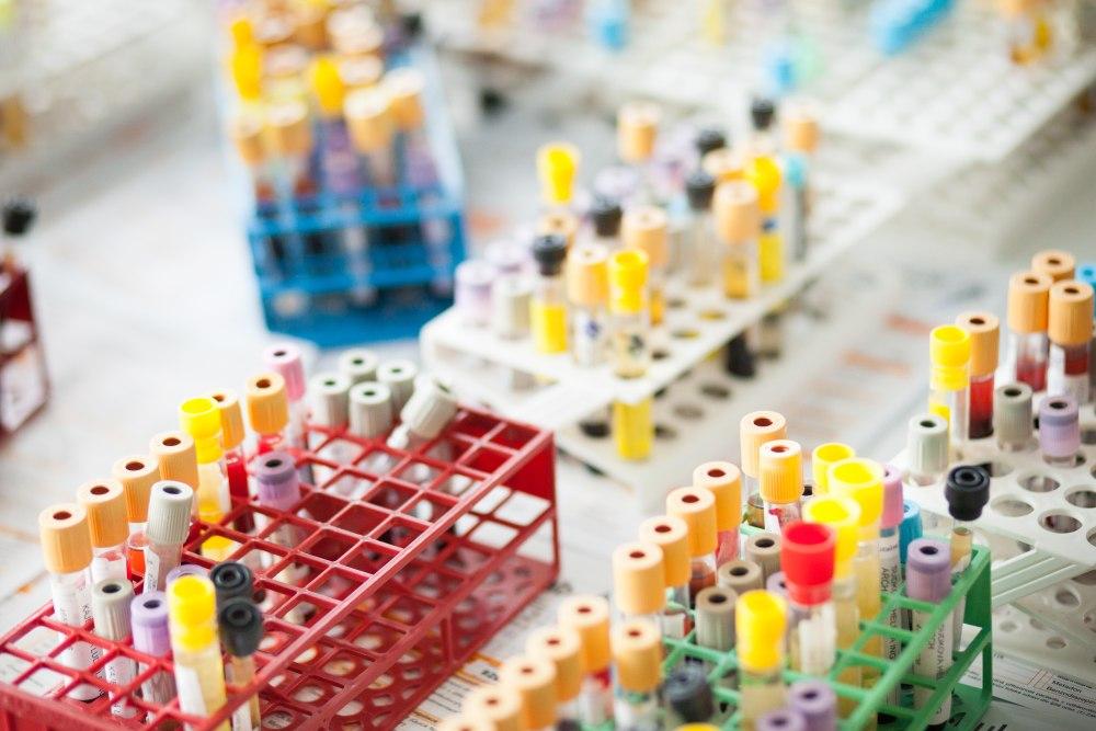 Široké spektrum laboratorních vyšetření, odběrová místa po celé ČR
