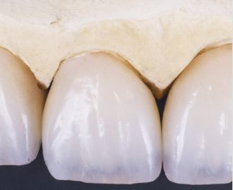 Protetika – zhotovení fixních nebo snímacích zubních náhrad