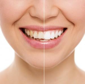 Estetická stomatologie, bělení zubů