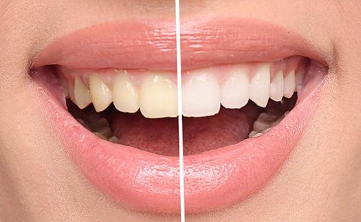 Bělení zubů Brno - pískování zubů, Airflow, ordinační bělení zubů