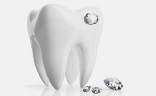 Odborná a bezbolestná aplikace dentálních šperků na přední zuby