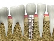 Zubní implantáty Praha 4
