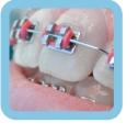 Ortodoncie, rovnání zubů Praha 1 - fixní rovnátka