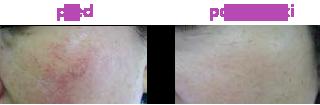 Laserové omlazení obličeje pleti pokožky rejuvenace odstranění žilek a metliček laserová léčba akné Liberec