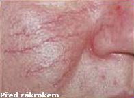 Laserové odstranění žilek Znojma