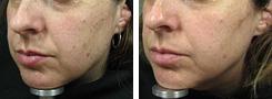Laserové operace, vyhlazení vrásek, operace křečových žil, kosmetika Moravské Budějovice