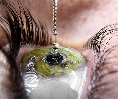 Vyšetření zraku bez objednání