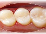 bílé zubní výplně plomby
