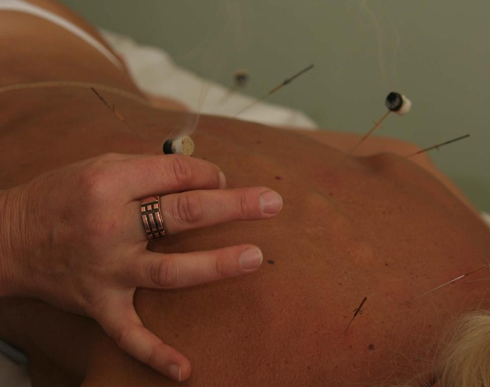 Akupunktura Praha - čínská léčba