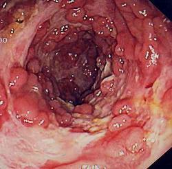 Crohnova choroba - riziko rakoviny tlustého střeva