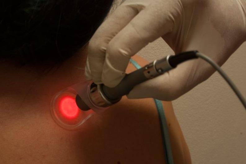 Fototerapii můžete využít i k odstranění jizev či strií.