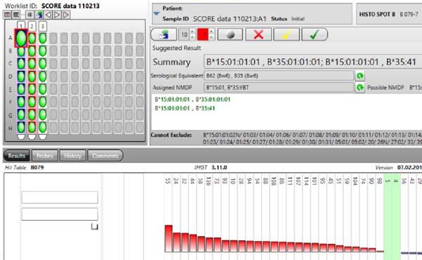 Automatické systémy pro stanovení HLA - HISTO SPOT -  rychlé výsledky za cca 3 hodiny