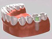 náhrada jednoho zubu implantátem