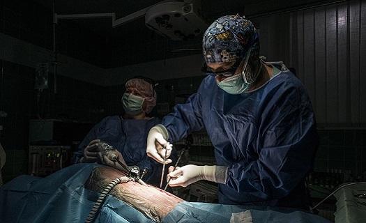 3D laparoskopie