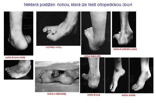 Identifikace a měření ortopedické obuvi