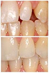 keramické fazety zhotovené během jedné návštěvy zubaře