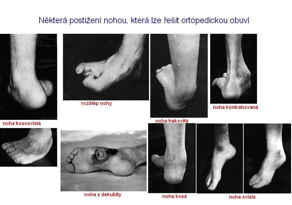 Ortopedická obuv na míru - ortopedické úpravy standardní obuvi, měření a indikace