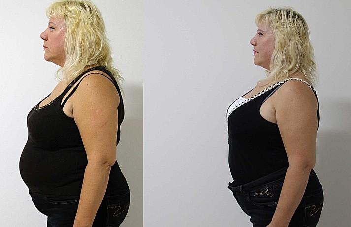 Aurum Clinic, s.r.o., vyhlazení vrásek, odstranění ochablé kůže, zvětšení a korekce prsou