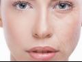 Terapie BioRev Kolagen 100% ovlivňuje procesy stárnutí a vitalitu pleti