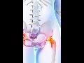 Osteocentrum Brno, diagnostika a léčba osteoporózy, rehabilitace