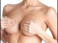Plastická chirurgie pro ženy i muže, šetrná liposukce, zvětšení a modelace prsou
