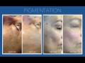 Plasma Covering, Mikrojehličkování - rejuvenace pokožky, oživení, omlazení, výživa kyselinou hyaluronovou