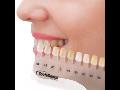 Výroba dentálních materiálů Jičín -  kompletní řešení pro zubní lékaře a laboratoře