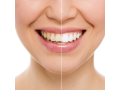 Zubní lékař Praha 6 – komplexní péče pro Váš chrup