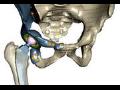 Beznoska s.r.o., Kladno, zhotovení kloubních endoprotéz, kolene, kyčle, ramene, lokte