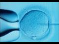 Umělé oplodnění, asistovaná reprodukce, léčba neplodnosti Ostrava