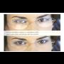 Brýlové čočky, skla pro korekci očních vad – úpravy brýlových čoček